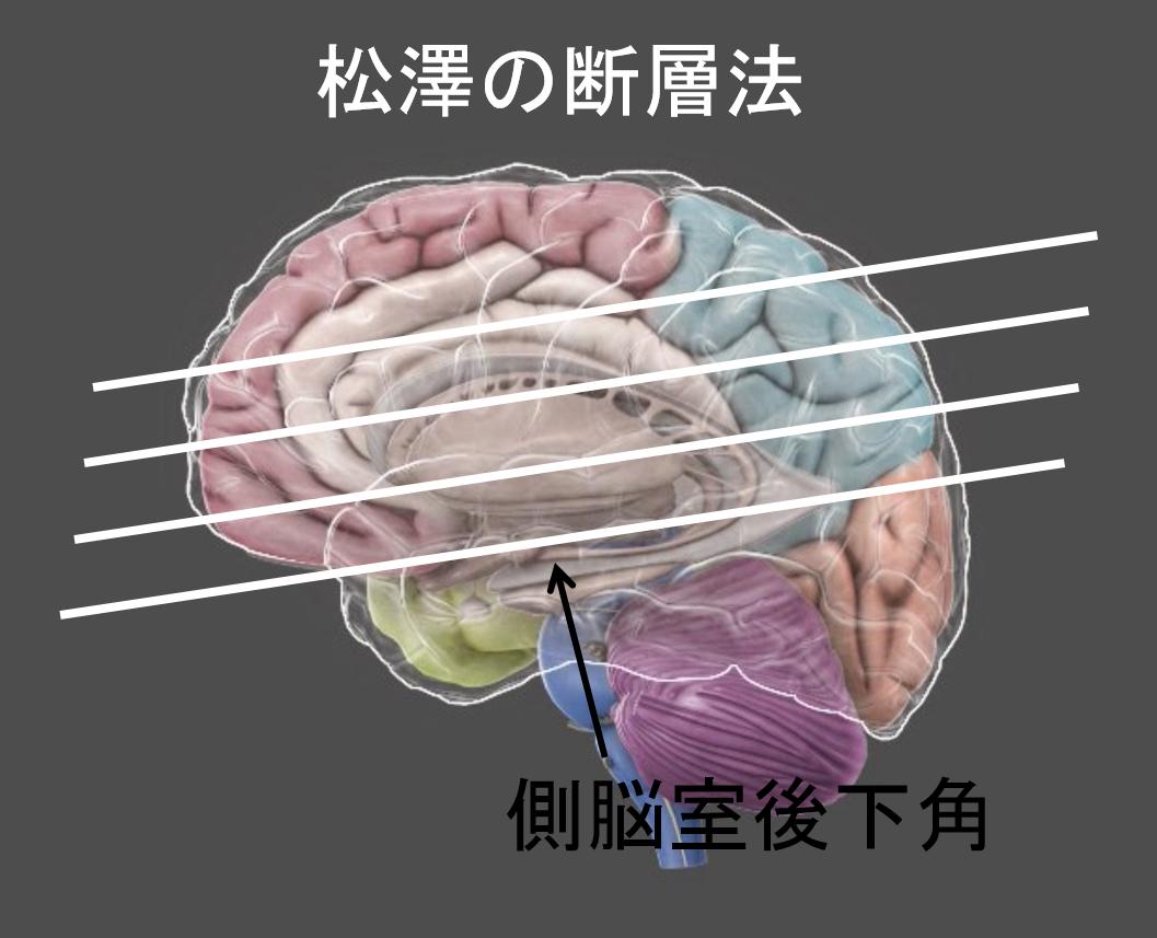 あなたのこころが苦しい理由はズバリ「脳のケガ」です
